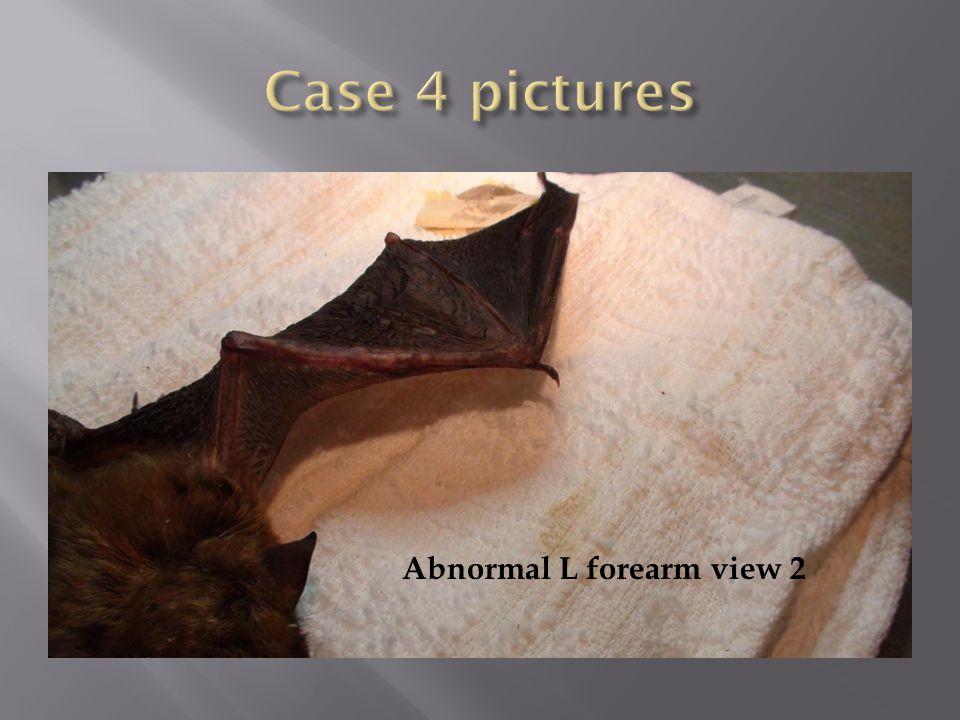Abnormal L forearm view 2