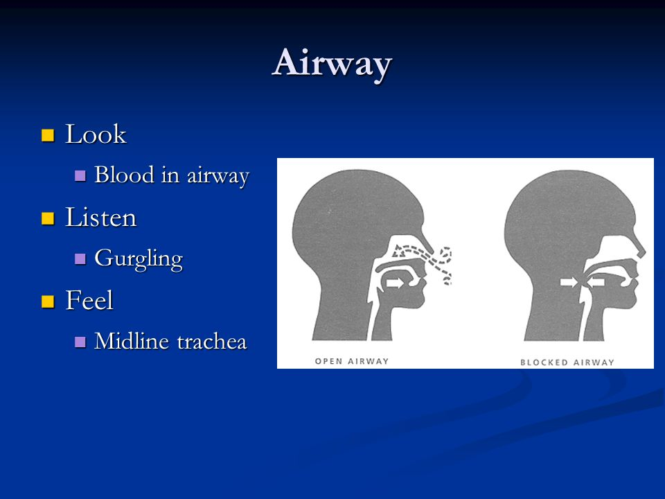 Airway Look Look Blood in airway Blood in airway Listen Listen Gurgling Gurgling Feel Feel Midline trachea Midline trachea