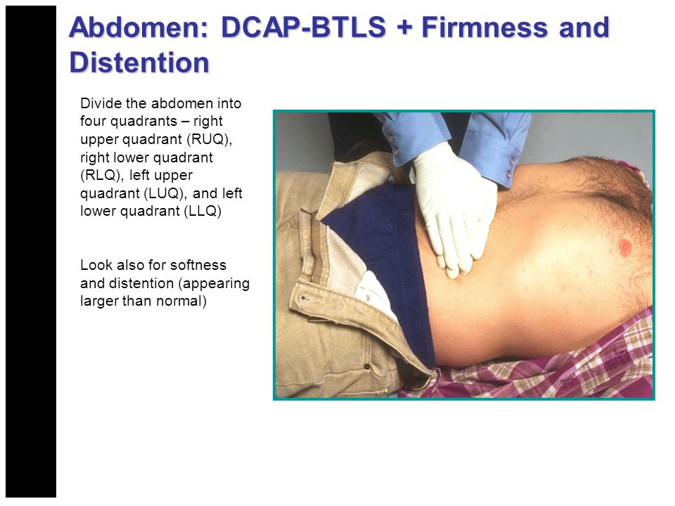 Abdomen: DCAP-BTLS + Firmness and Distention Divide the abdomen into four quadrants – right upper quadrant (RUQ), right lower quadrant (RLQ), left upper quadrant (LUQ), and left lower quadrant (LLQ) Look also for softness and distention (appearing larger than normal)