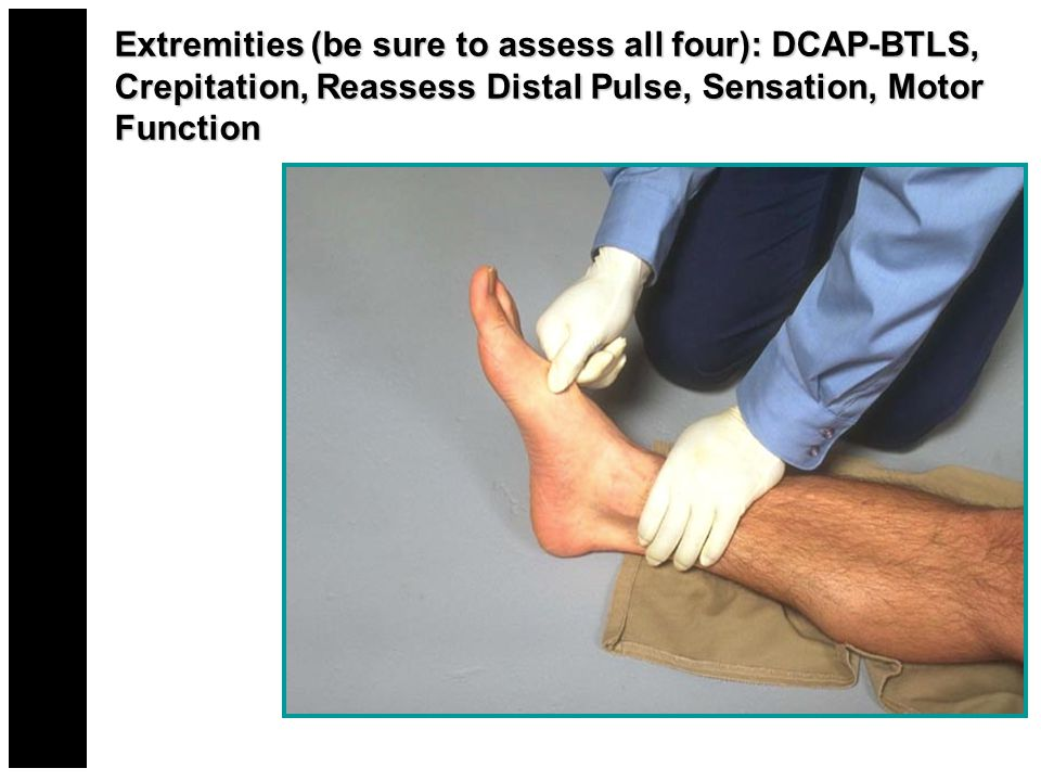 Extremities (be sure to assess all four): DCAP-BTLS, Crepitation, Reassess Distal Pulse, Sensation, Motor Function