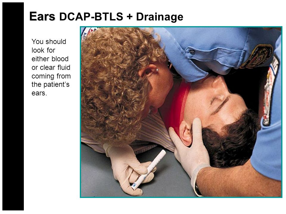 Ears Ears DCAP-BTLS + Drainage You should look for either blood or clear fluid coming from the patient's ears.