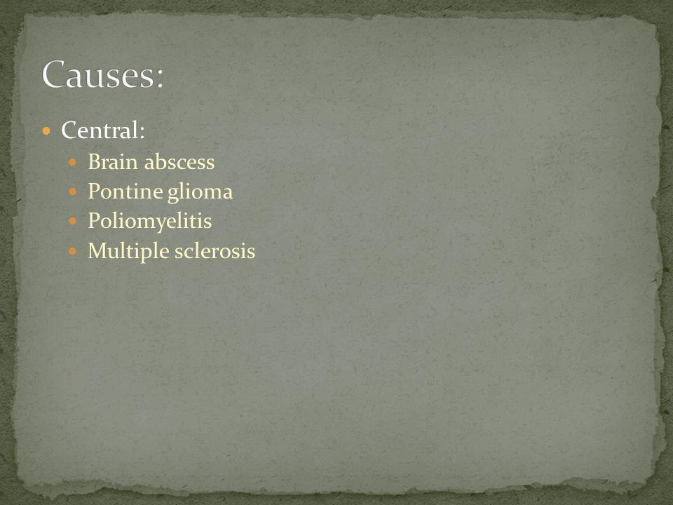 Central: Brain abscess Pontine glioma Poliomyelitis Multiple sclerosis