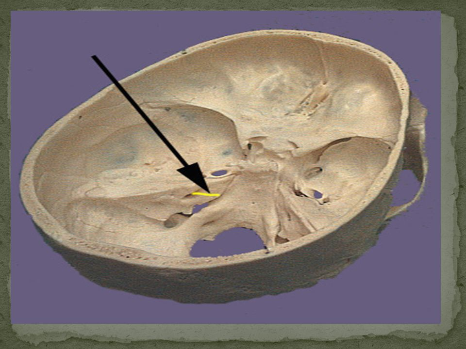 Intracranial part Intratemporal part Extracranial part