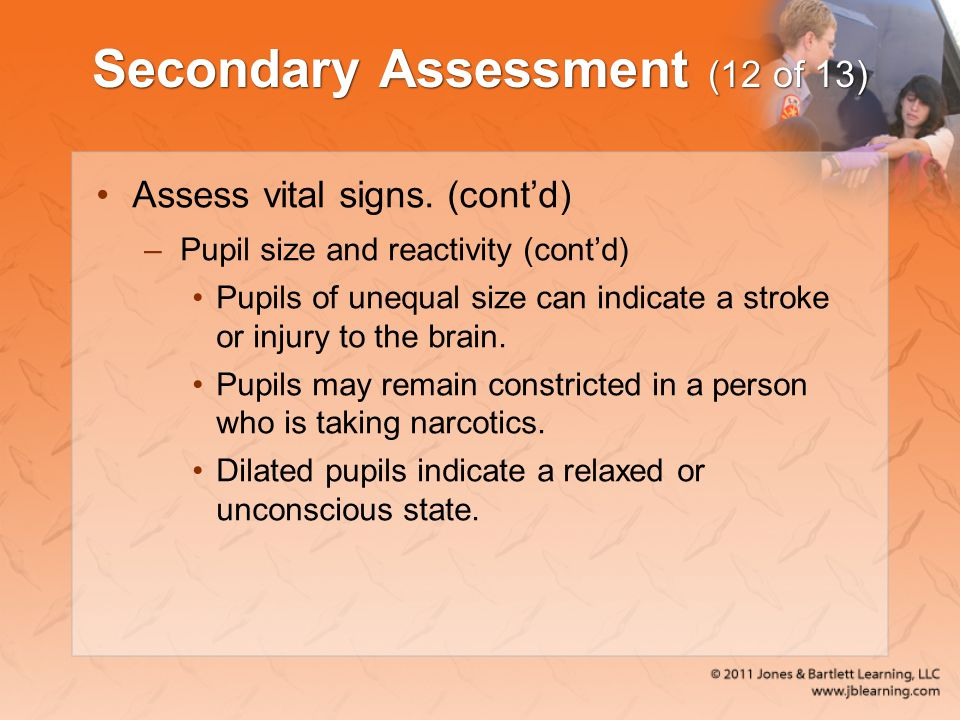 Secondary Assessment (12 of 13) Assess vital signs. (cont'd) –Pupil size and reactivity (cont'd) Pupils of unequal size can indicate a stroke or injur