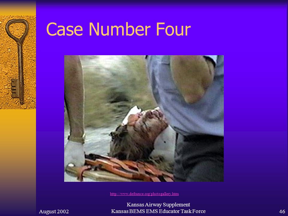 August 2002 Kansas Airway Supplement Kansas BEMS EMS Educator Task Force45 Case Number Four  An 18 year old male was beaten by several men after an argument.