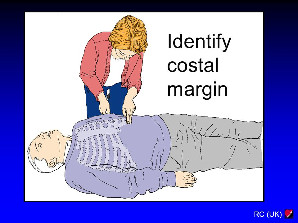 RC (UK) Identify costal margin