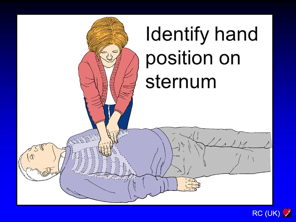RC (UK) Identify hand position on sternum