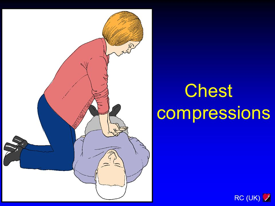 RC (UK) Chest compressions