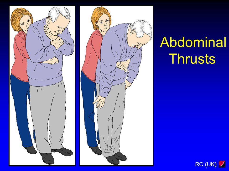 RC (UK) Abdominal Thrusts