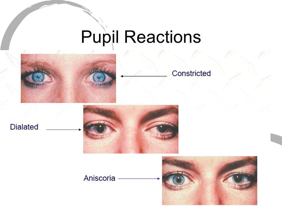 Pupil Reactions