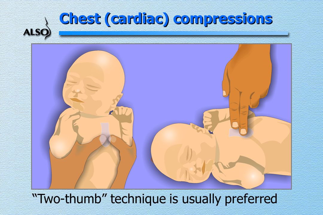 Chest (cardiac) compressions Two-thumb technique is usually preferred