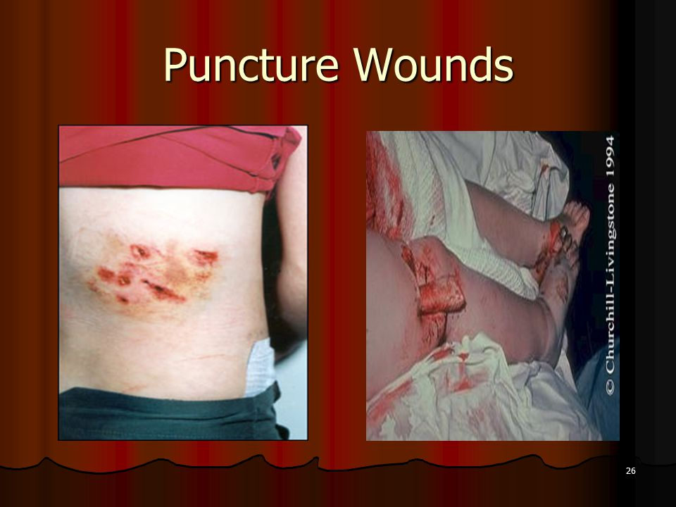 26 Puncture Wounds