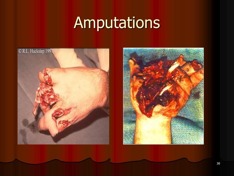 30 Amputations
