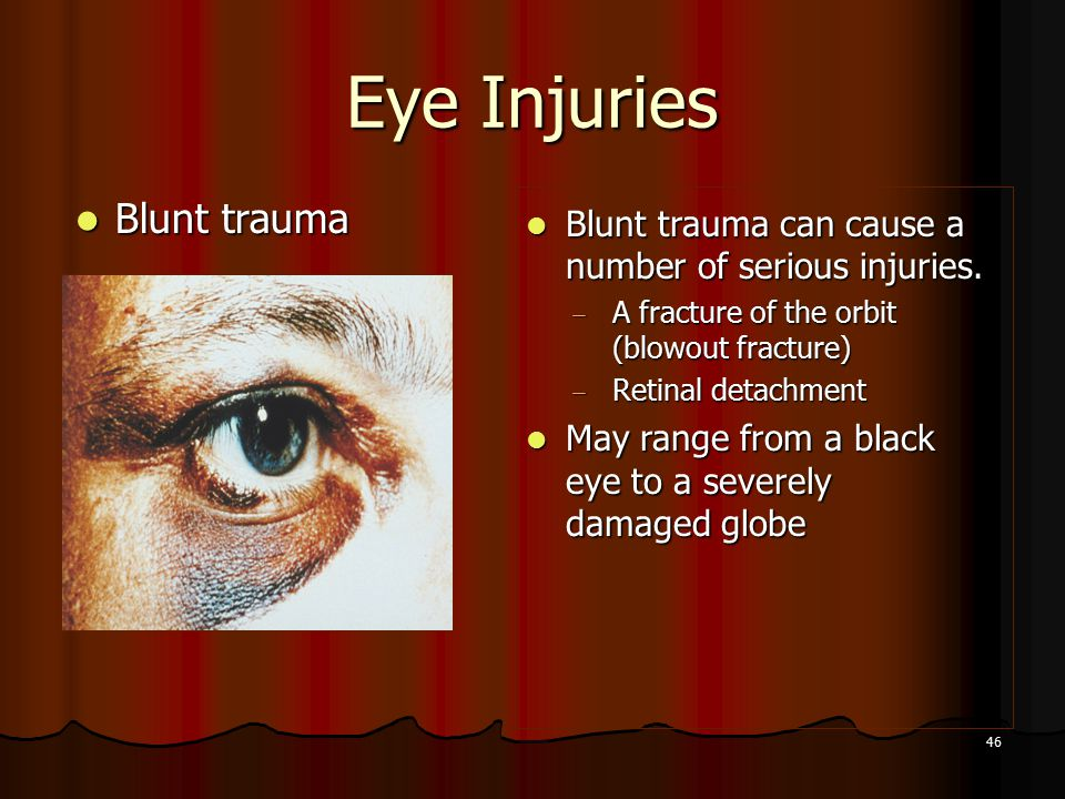 46 Eye Injuries Blunt trauma Blunt trauma Blunt trauma can cause a number of serious injuries.