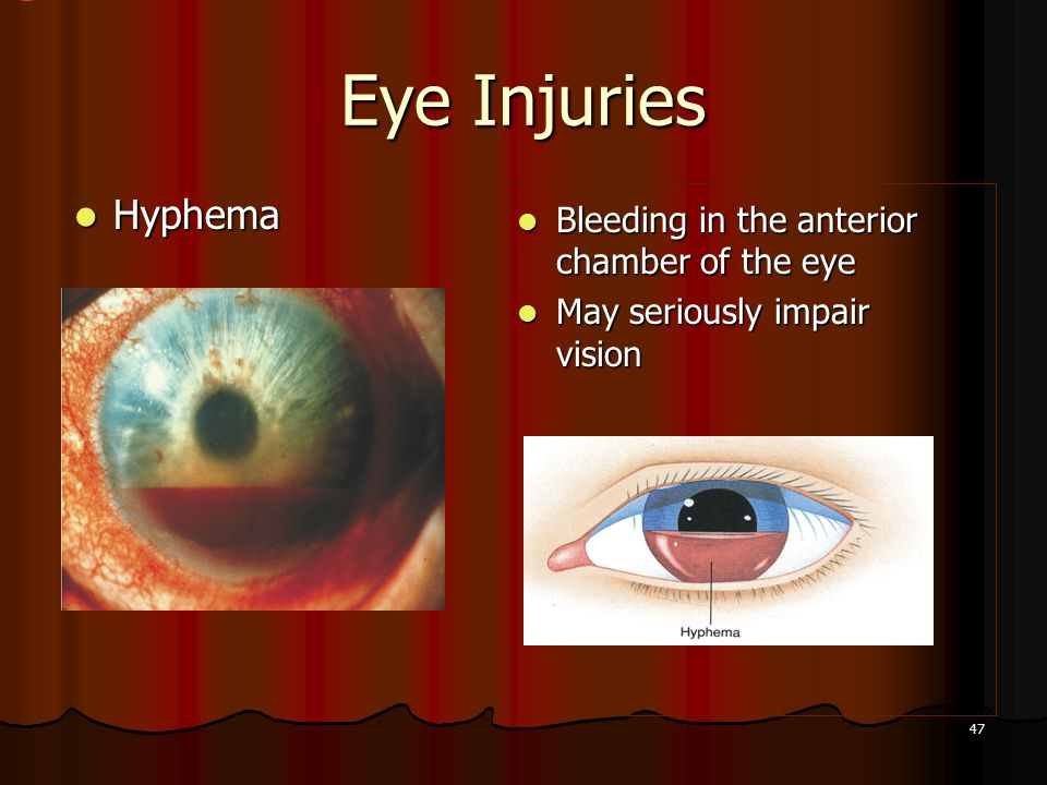 47 Eye Injuries Hyphema Hyphema Bleeding in the anterior chamber of the eye Bleeding in the anterior chamber of the eye May seriously impair vision May seriously impair vision