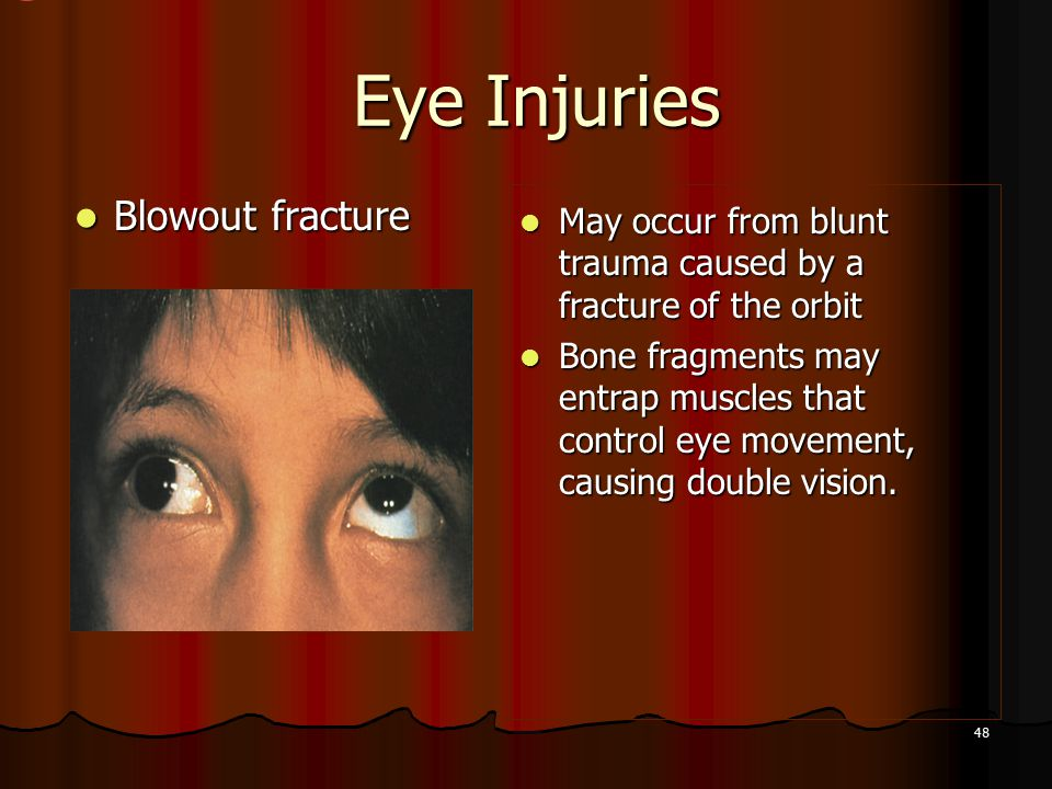 48 Eye Injuries Eye Injuries Blowout fracture Blowout fracture May occur from blunt trauma caused by a fracture of the orbit May occur from blunt trauma caused by a fracture of the orbit Bone fragments may entrap muscles that control eye movement, causing double vision.