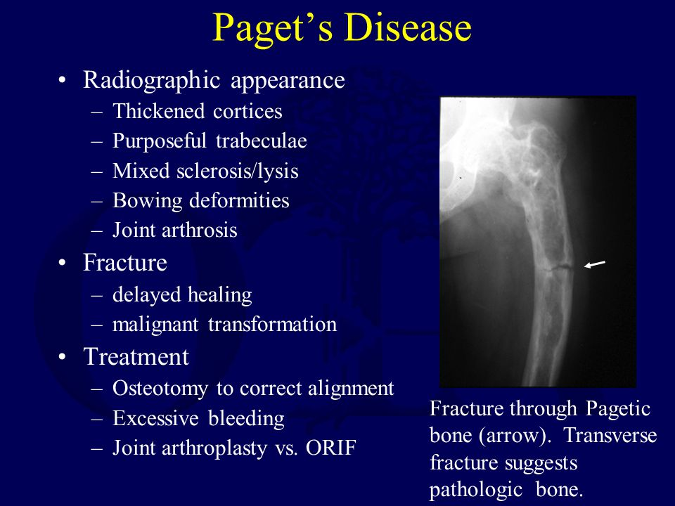 Paget's Disease Radiographic appearance –Thickened cortices –Purposeful trabeculae –Mixed sclerosis/lysis –Bowing deformities –Joint arthrosis Fractur
