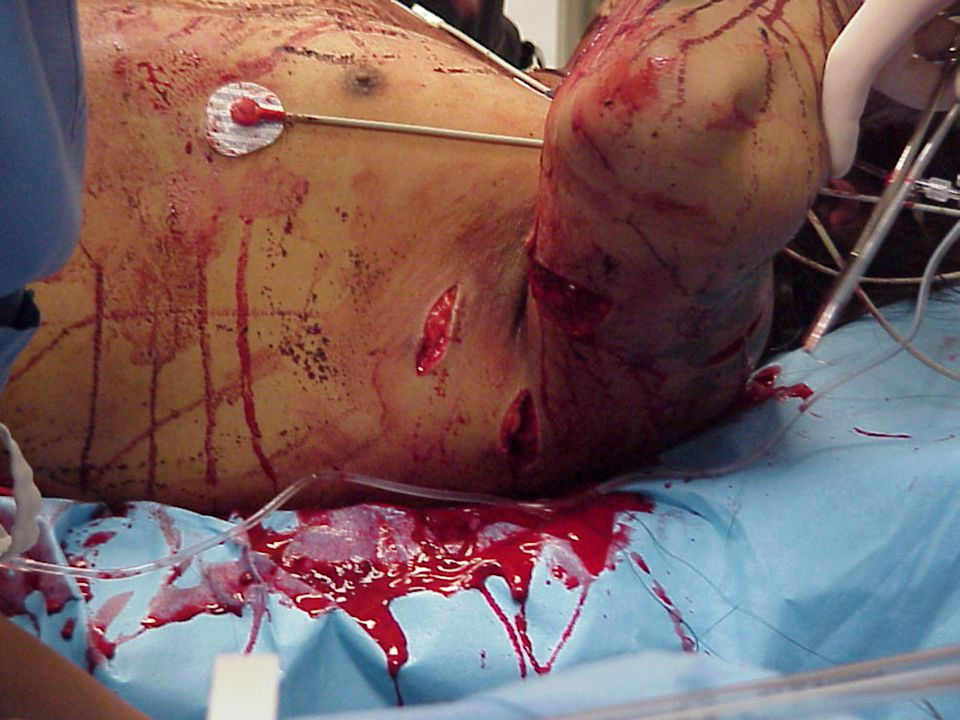 OPEN PNEUMOTHORAX Develops when penetration injury to the chest allows the pleural space to be exposed to atmospheric pressure - Sucking Chest Wound Q- WHAT MAY CAUSE A SCW.