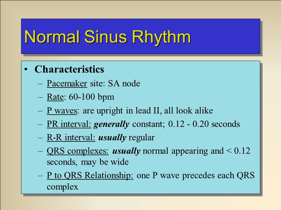 Normal Sinus Rhythm Characteristics –Pacemaker site: SA node –Rate: 60-100 bpm –P waves: are upright in lead II, all look alike –PR interval: generall
