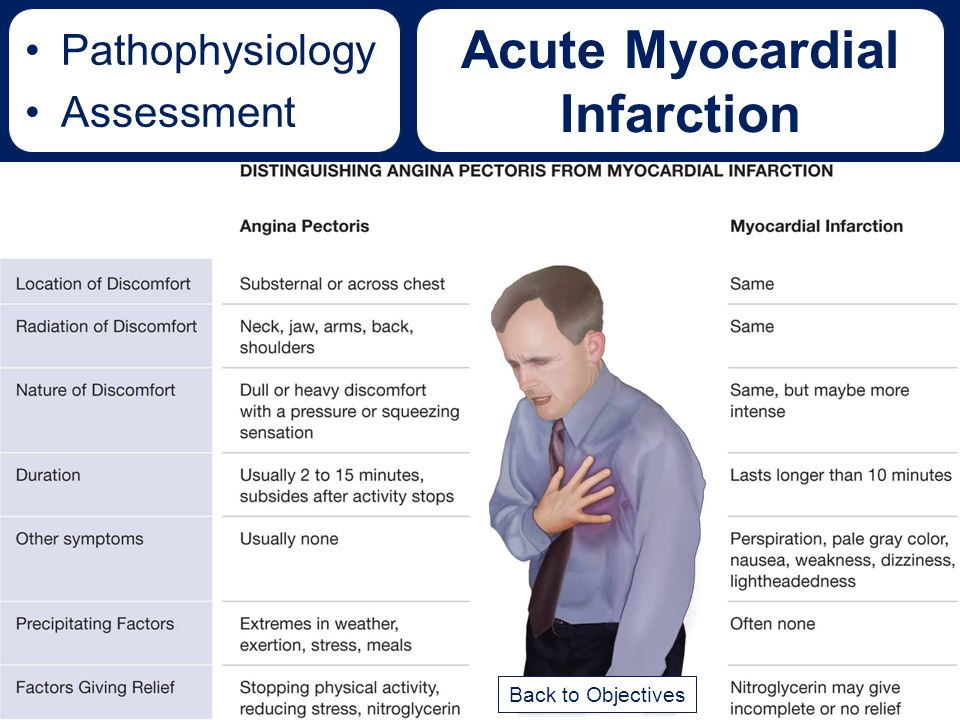 Acute Myocardial Infarction Pathophysiology Assessment Back to Objectives