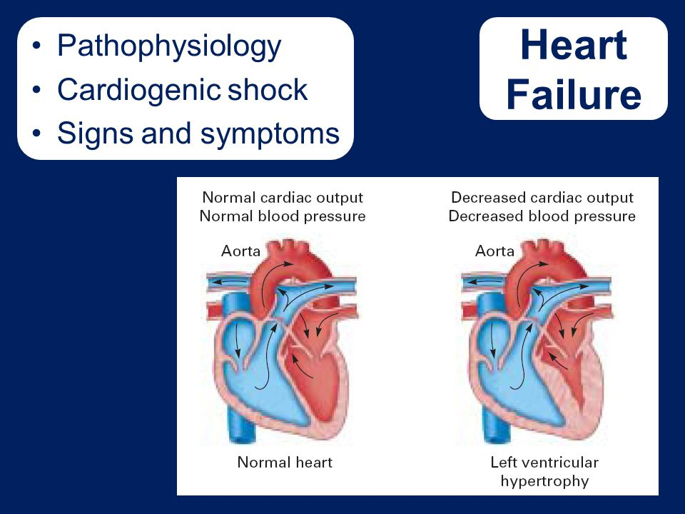 Pathophysiology Cardiogenic shock Signs and symptoms Need figure 17-12 Don't have art yet - wds