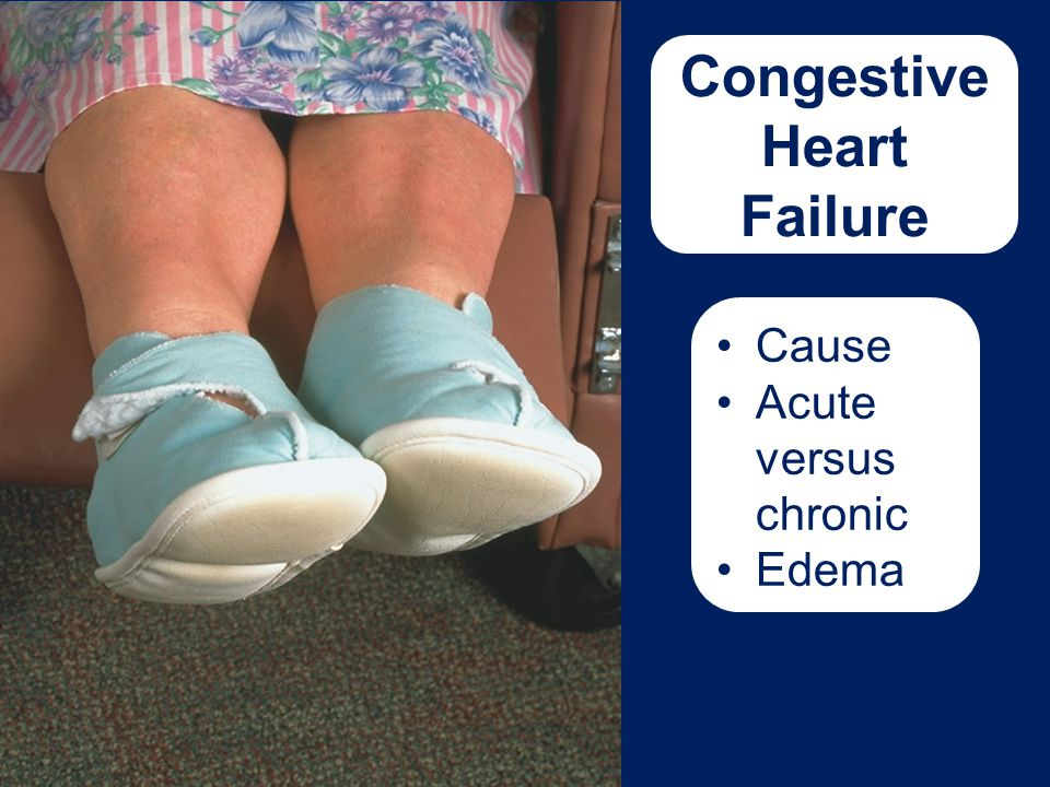 Congestive Heart Failure Cause Acute versus chronic Edema