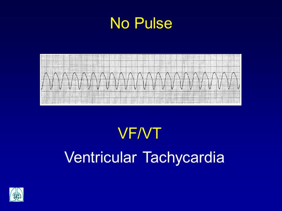 Ventricular Tachycardia No Pulse VF/VT