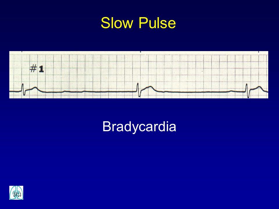 Bradycardia Slow Pulse