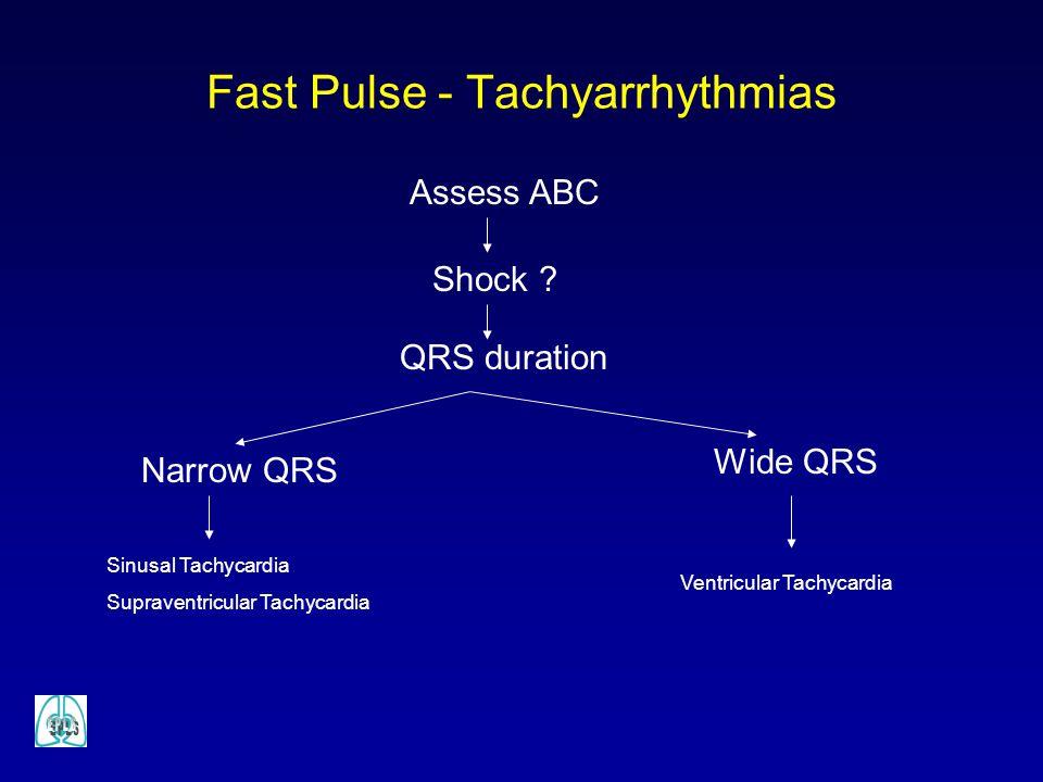 Fast Pulse - Tachyarrhythmias Assess ABC Shock ? QRS duration Narrow QRS Wide QRS Sinusal Tachycardia Supraventricular Tachycardia Ventricular Tachyca