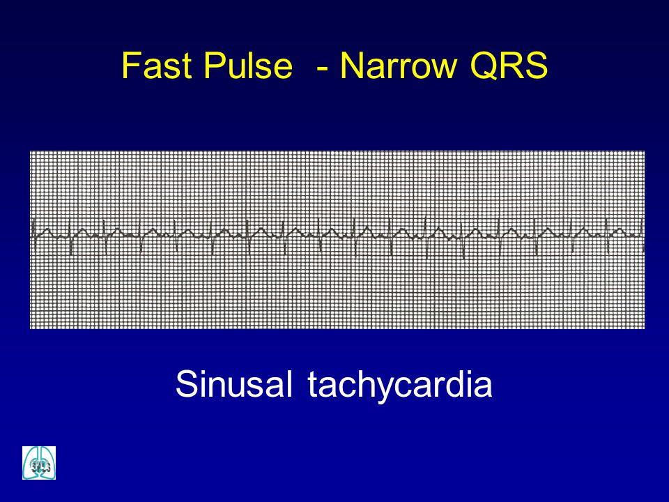 Fast Pulse - Narrow QRS Sinusal tachycardia