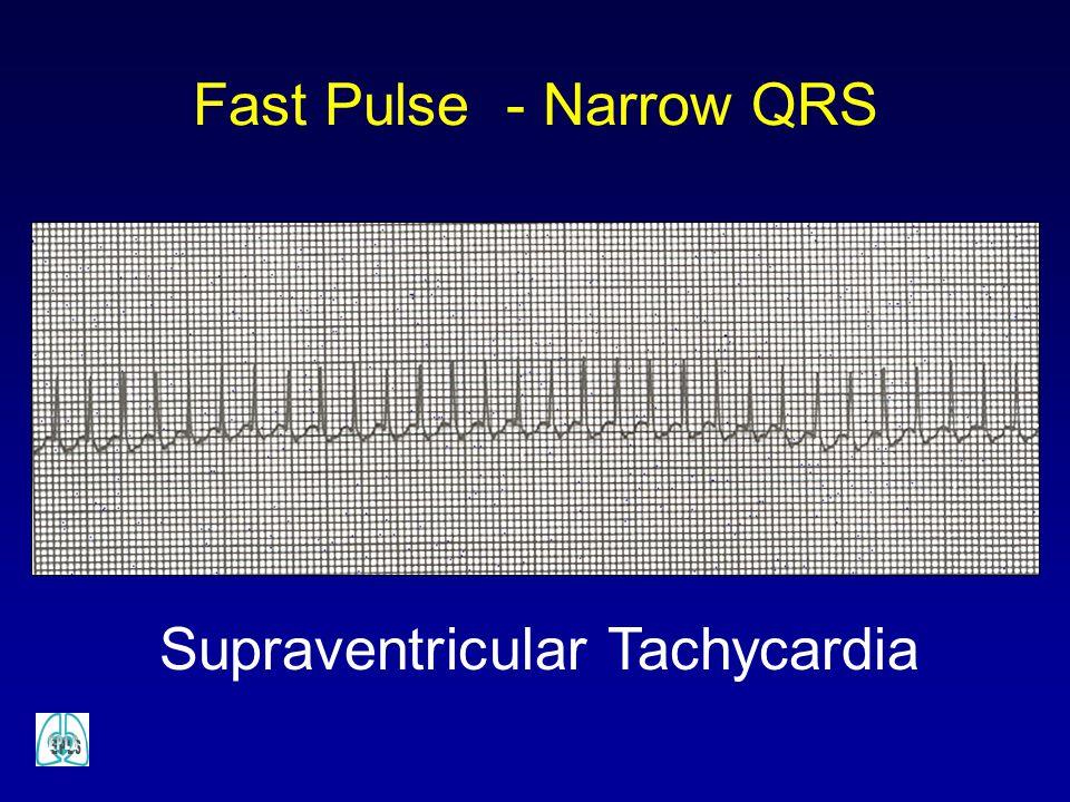Fast Pulse - Narrow QRS Supraventricular Tachycardia