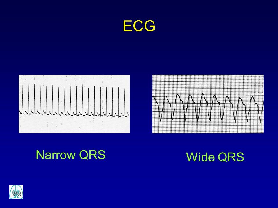 Wide QRS Narrow QRS ECG