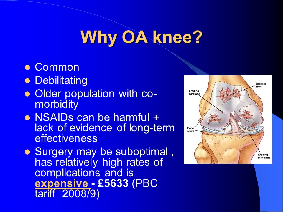 Why OA knee.