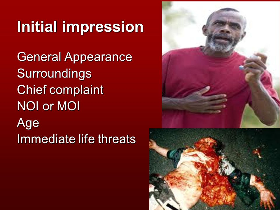 Initial impression General Appearance Surroundings Chief complaint NOI or MOI Age Immediate life threats