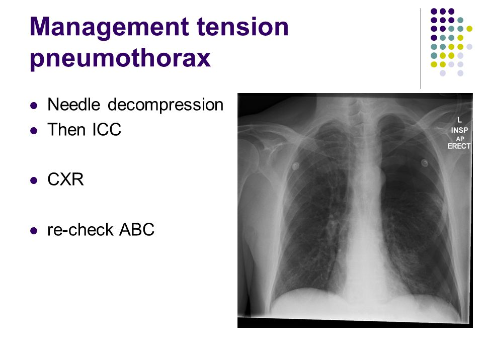 Assessment of pneumothorax Tension pneumothorax RR30 BP100/50 HR145 tracheal deviation decreased chest movement venous engorgement What are you going to do now?