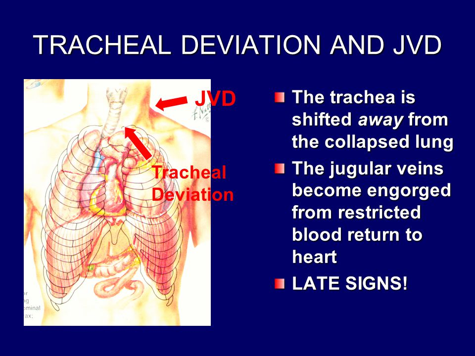 TRACHEAL DEVIATION AND JVD The trachea is shifted away from the collapsed lung The jugular veins become engorged from restricted blood return to heart LATE SIGNS.