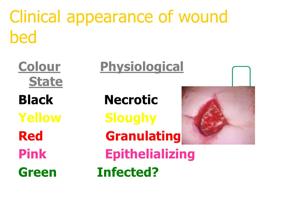 Clinical appearance of wound bed Colour Physiological State Black Necrotic Yellow Sloughy Red Granulating Pink Epithelializing Green Infected?