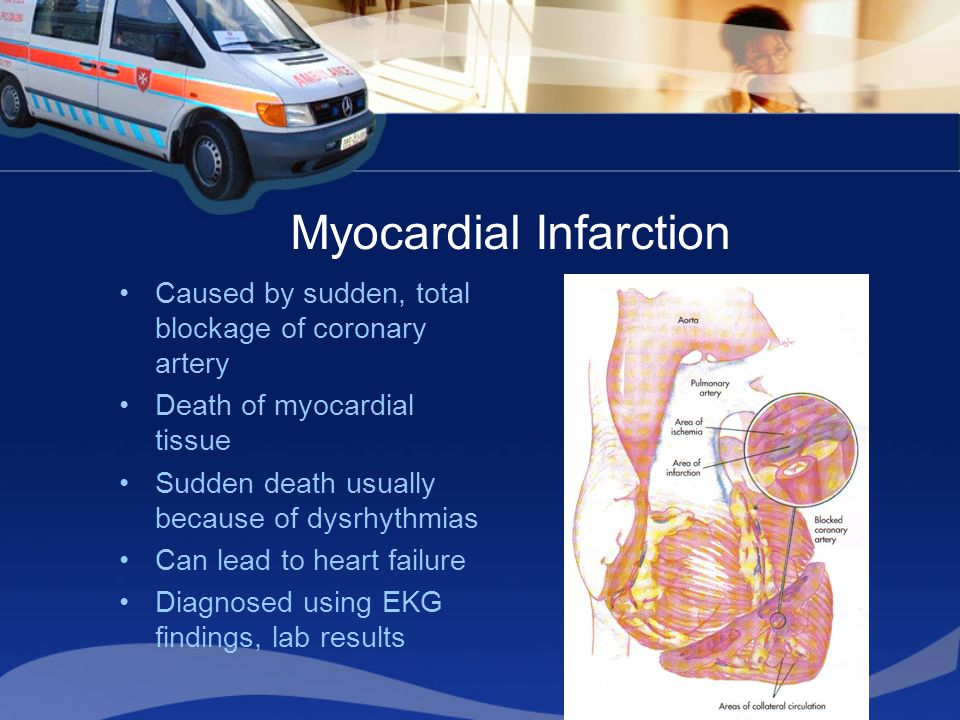 Myocardial Infarction Caused by sudden, total blockage of coronary artery Death of myocardial tissue Sudden death usually because of dysrhythmias Can