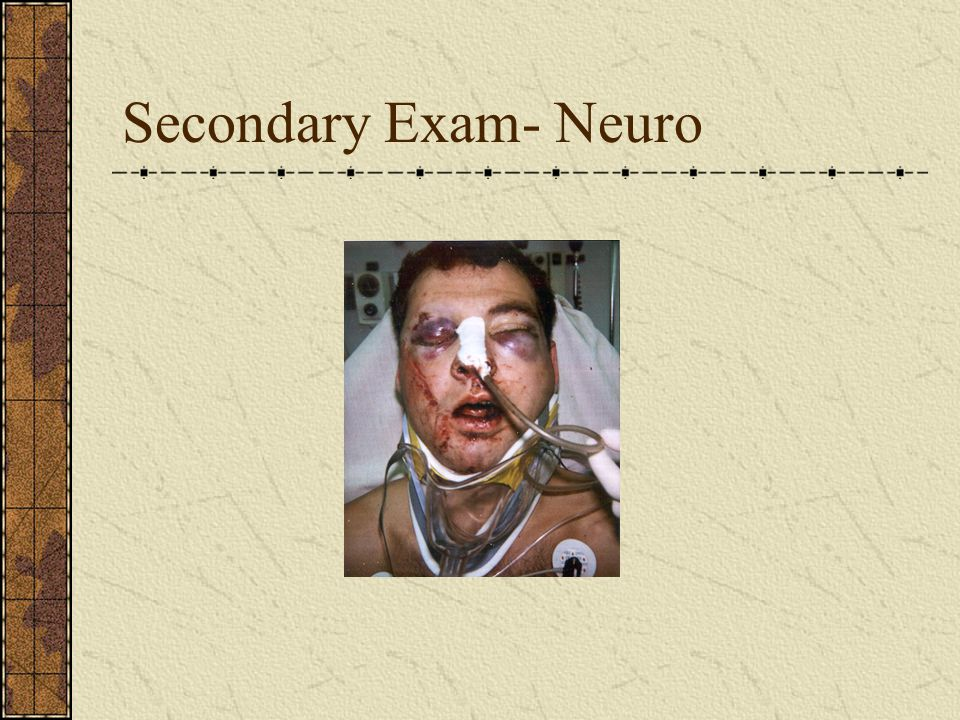 Secondary Exam- Neuro