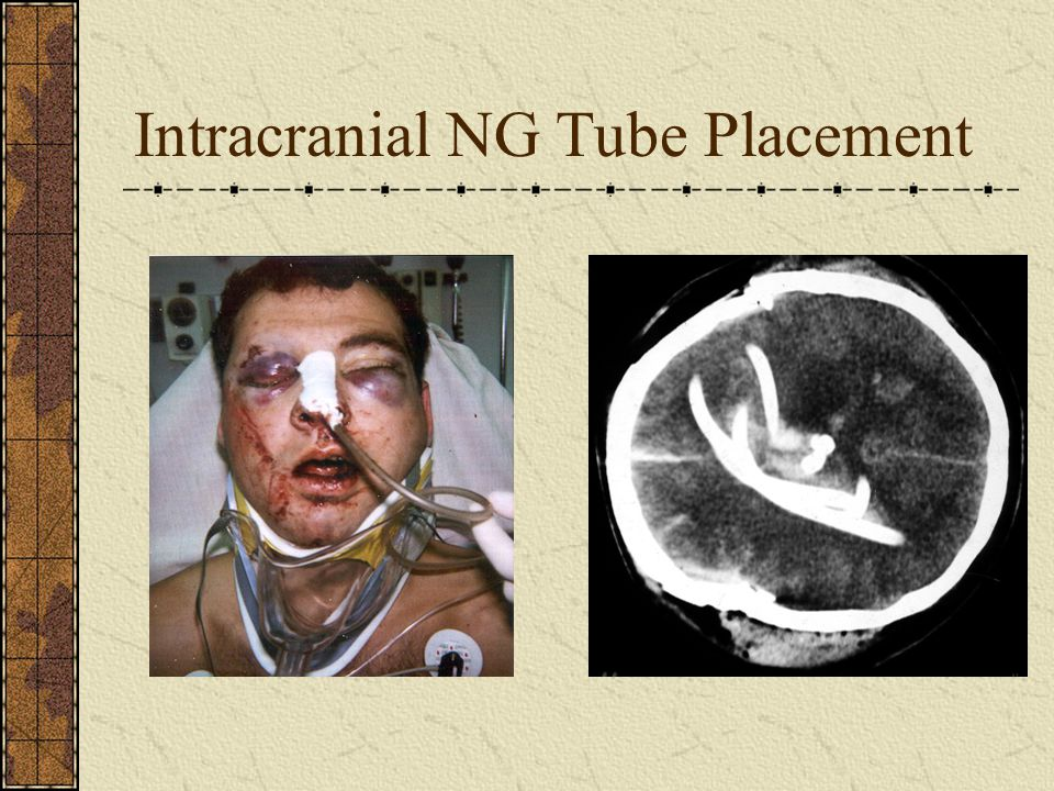Intracranial NG Tube Placement