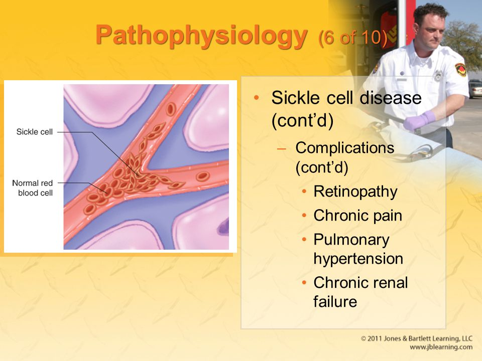 Pathophysiology (6 of 10) Sickle cell disease (cont'd) –Complications (cont'd) Retinopathy Chronic pain Pulmonary hypertension Chronic renal failure