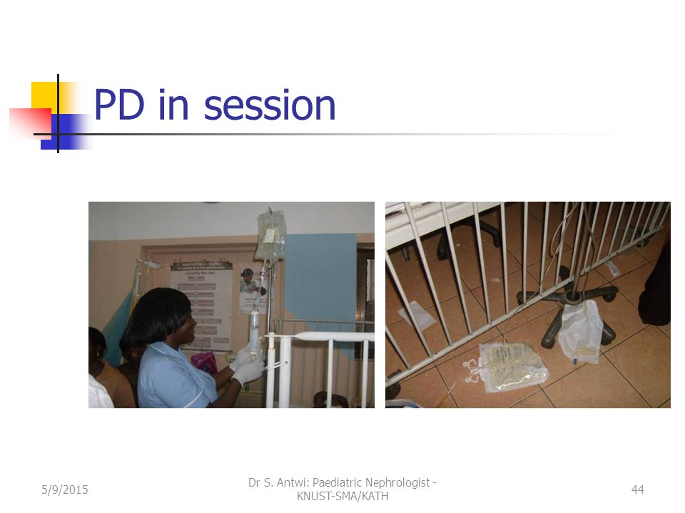 PD in session 5/9/201544 Dr S. Antwi: Paediatric Nephrologist - KNUST-SMA/KATH
