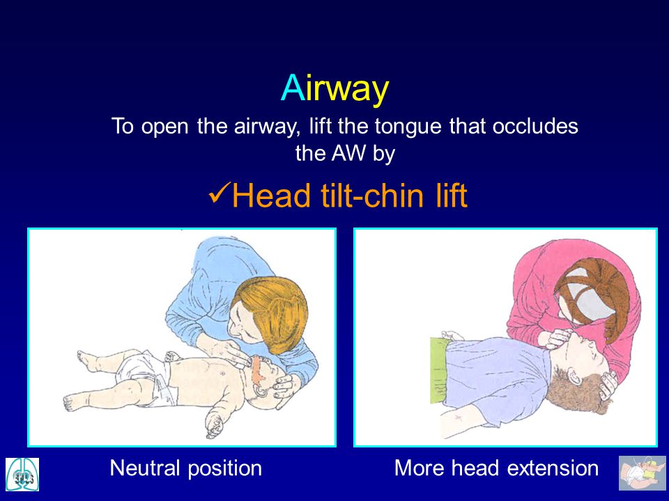 Airway Head tilt-chin lift To open the airway, lift the tongue that occludes the AW by Neutral positionMore head extension