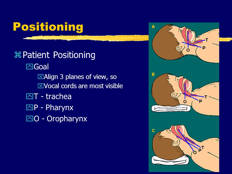 Positioning zPatient Positioning yGoal xAlign 3 planes of view, so xVocal cords are most visible yT - trachea yP - Pharynx yO - Oropharynx