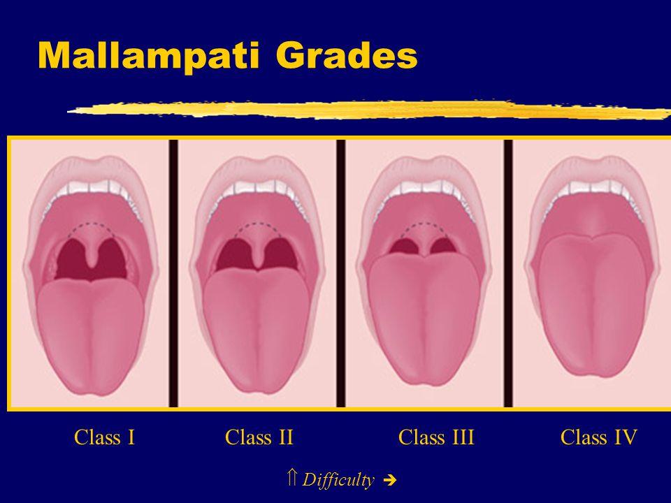 Mallampati Grades  Difficulty  Class I Class II Class III Class IV