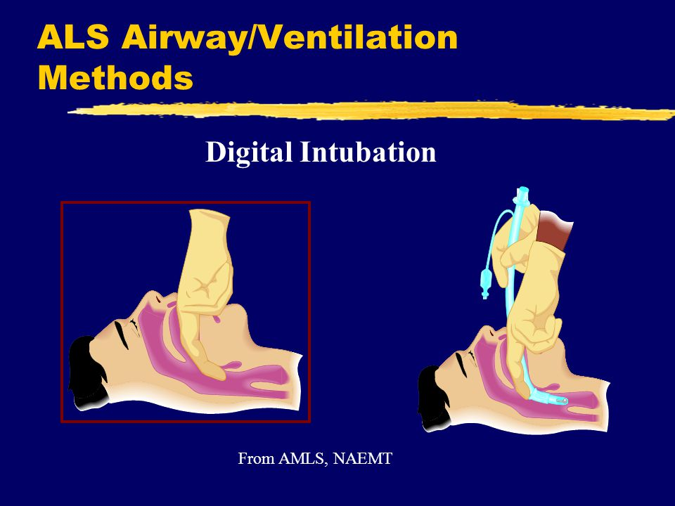 ALS Airway/Ventilation Methods Digital Intubation From AMLS, NAEMT