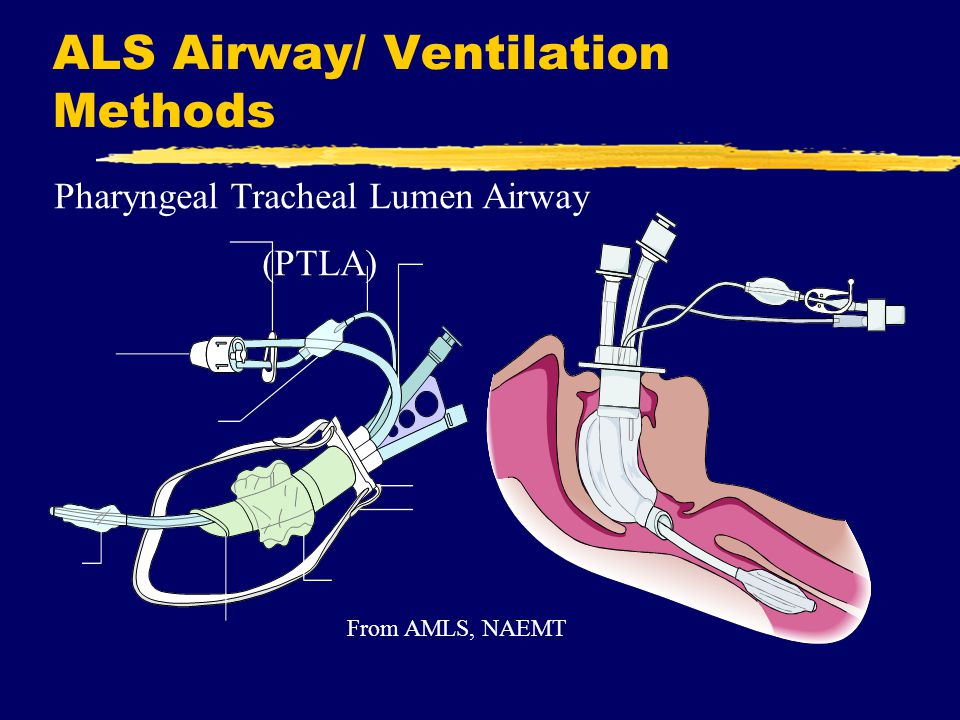 ALS Airway/ Ventilation Methods Pharyngeal Tracheal Lumen Airway (PTLA) From AMLS, NAEMT