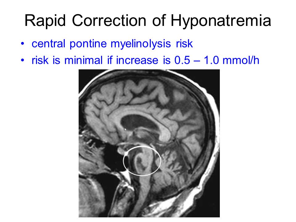 Rapid Correction of Hyponatremia central pontine myelinolysis risk risk is minimal if increase is 0.5 – 1.0 mmol/h