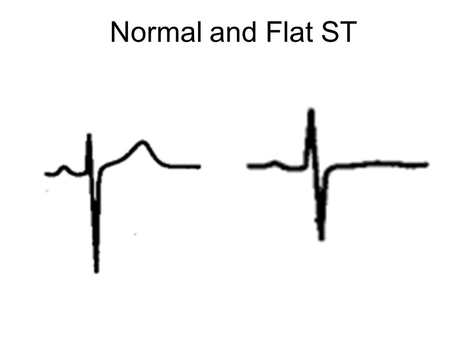 Normal and Flat ST