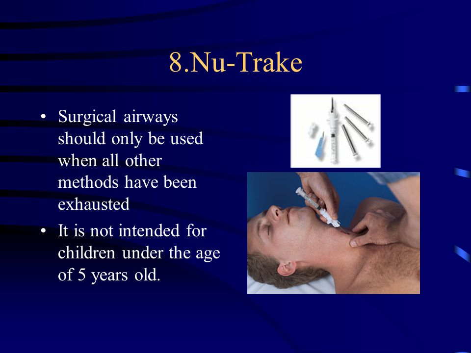 8.Nu-Trake Surgical airways should only be used when all other methods have been exhausted It is not intended for children under the age of 5 years old.